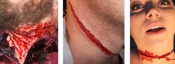 Neck Wound Prosthetics