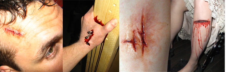 Body Wound Prosthetics