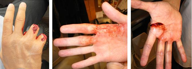 Hand wound prosthetics